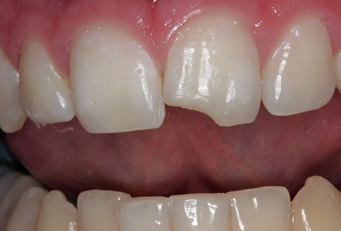 Home Remedies to Fix a Cracked or Broken Tooth