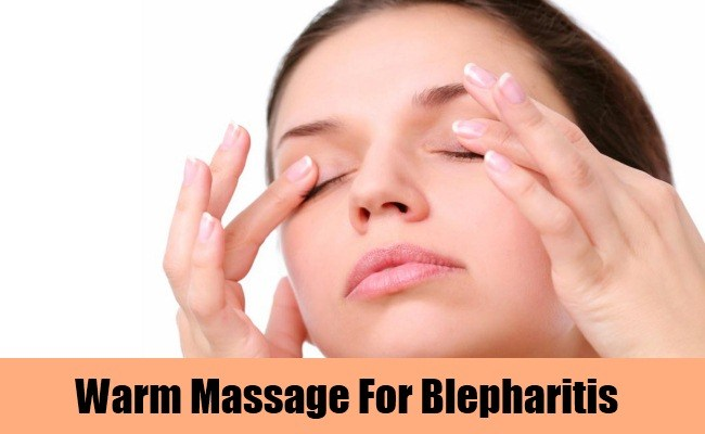 herbal remedies for blepharitis