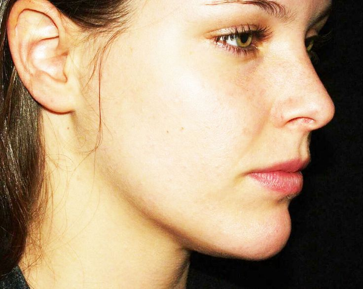 Home Remedies To reduce Blackheads in Your Ears