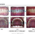 歯科矯正治療例 空隙歯列症例(主訴=すきっ歯) ヤマダ矯正歯科