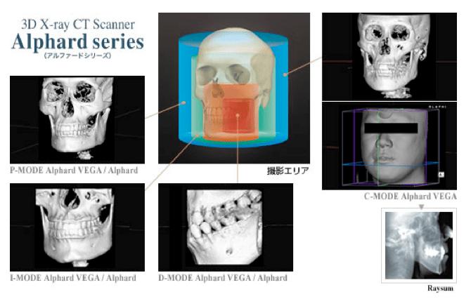 ヤマダ矯正歯科 歯科用CTスキャナー