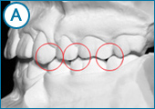 ヤマダ矯正歯科 歯並び 矯正