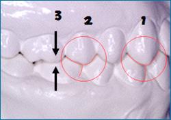 ヤマダ矯正歯科 理想の歯並び