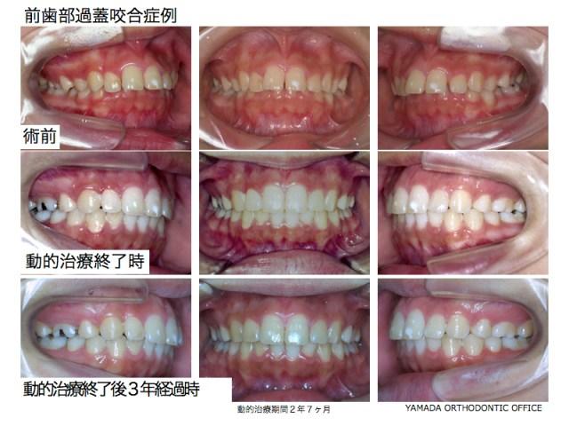 ヤマダ矯正歯科 過蓋咬合 矯正歯科治療例