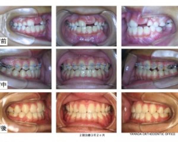 ヤマダ矯正歯科 下顎前突 開咬 リンガルアーチ症例