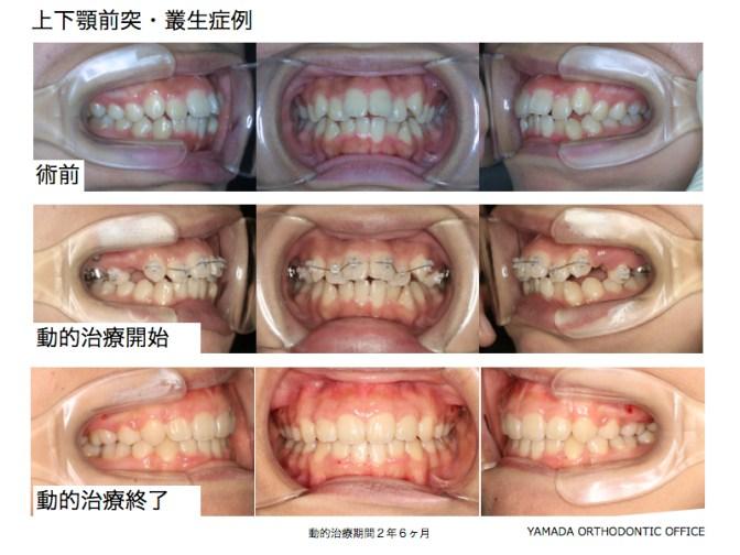 ヤマダ矯正歯科 上下顎前突 叢生 症例