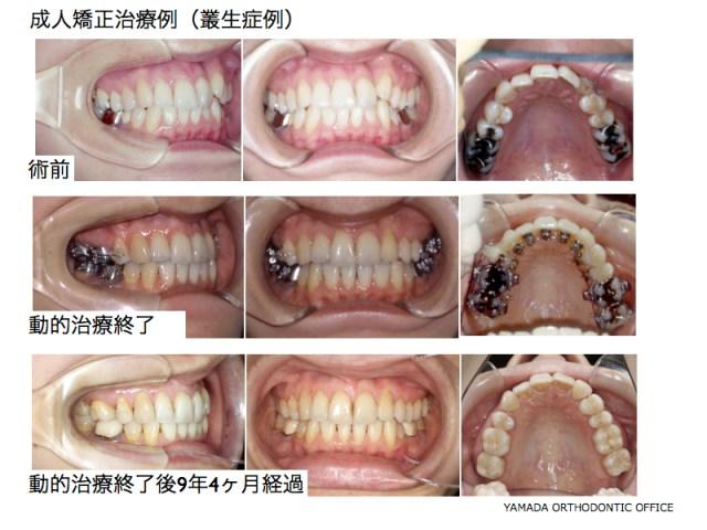 ヤマダ矯正歯科 リンガル 叢生症例 裏側矯正 舌側矯正