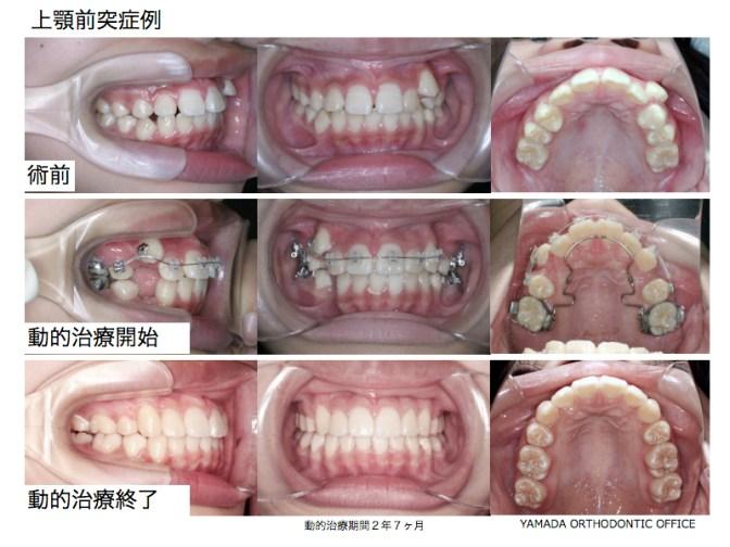 ヤマダ矯正歯科 上顎前突症例 矯正治療例