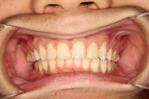 ヤマダ矯正歯科 患者さんの喜びのコメント