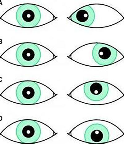 斜視手術後該注意什麼?_斜視與弱視