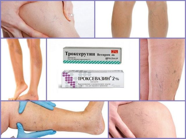 TROKSEVAZIN I TRYXERUTIN są przepisywane, gdy pojawia się siatka kapilarna
