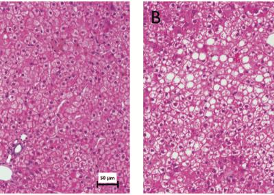 Cholesterol lipoprotein metabolism & LXR-agonist PD in humanized FRG mice