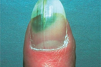 Figure 5 A And B Onycholysis Due To Pincer Nail C Acrylic Nails