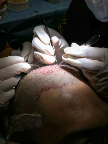 Close up of FUE hair transplant