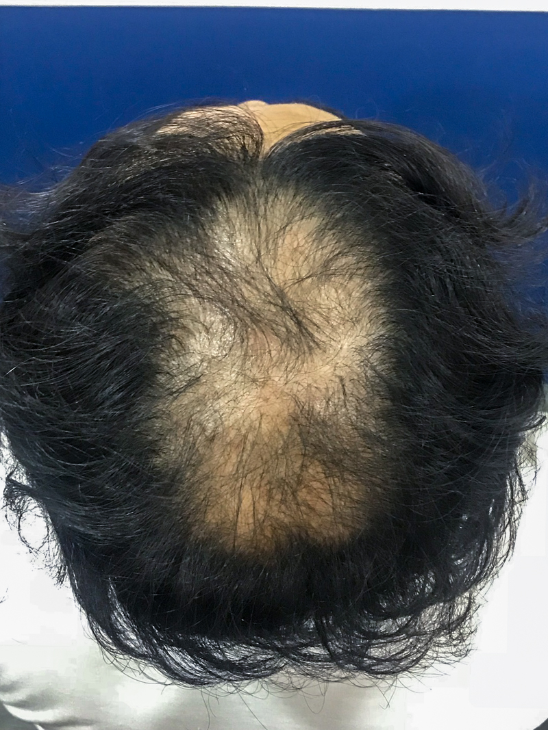 Before FUE hair transplant at Terra Medical Clinic, Singapore