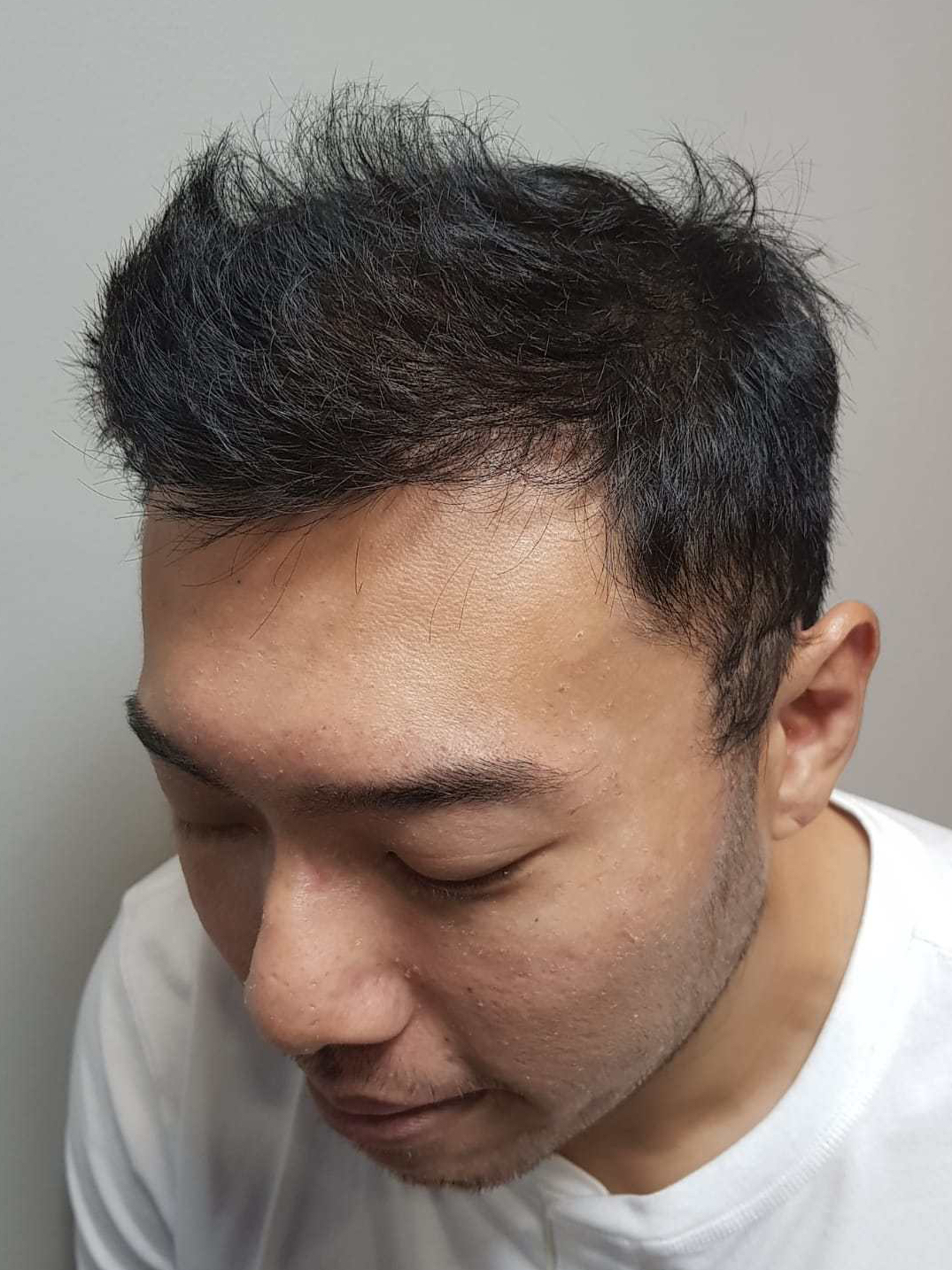 After FUE hair transplant surgery (five months)