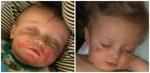 Before and after photographs of an infant recovering from a facial rash.