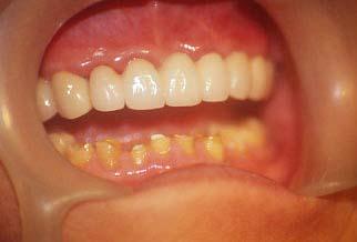 【牙套·神經】抽神經戴牙套 – TouPeenSeen部落格