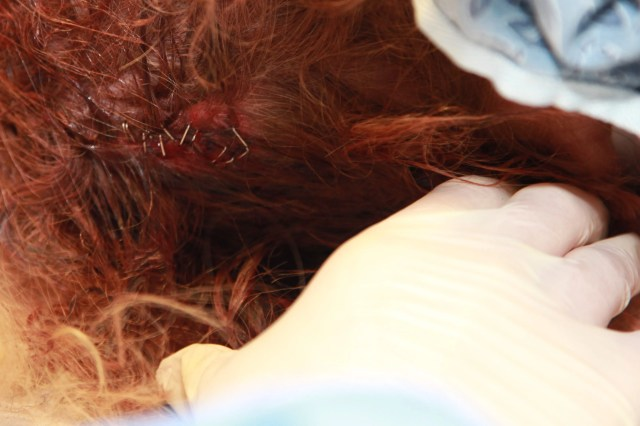 Photo of scalp laceration