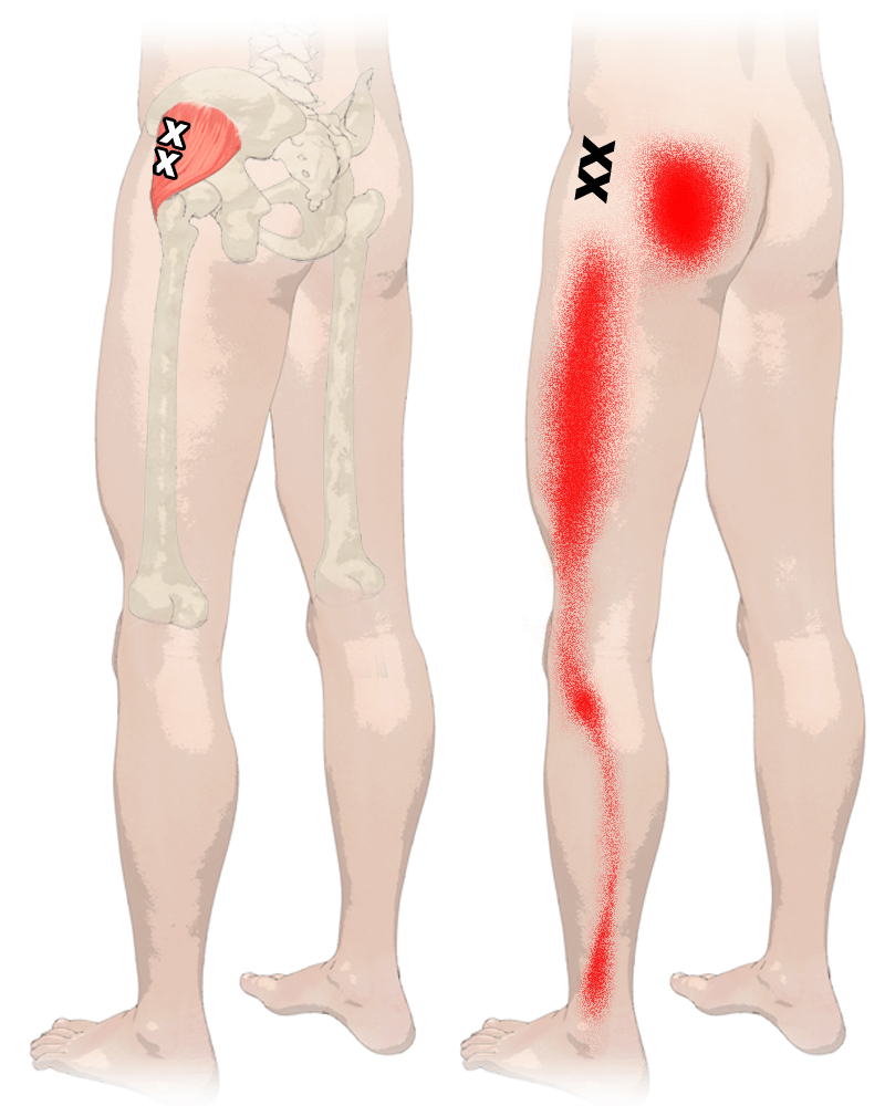 hight resolution of trigger points in gluteus minimus