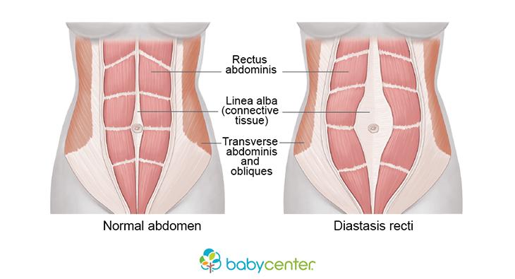 diastasis-recti-diagram