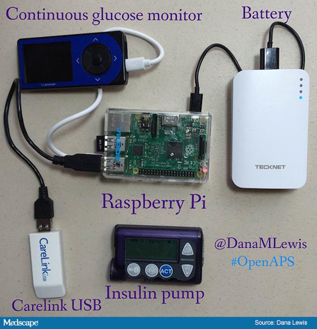 ih_160325_dana_lewis_glucose_monitoring_system_650x675