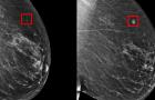 [논문] 딥러닝이 5년 뒤 유방암의 발병을 예측한다
