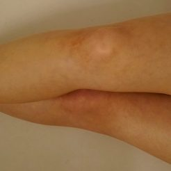 Legs after Vita Liberata Self Tanning Lotion May 2016 Birchbox Out of doors