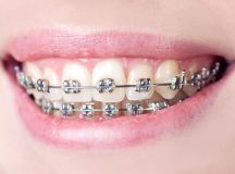 Traditional Dental Braces vs Invisalign Aligners ...
