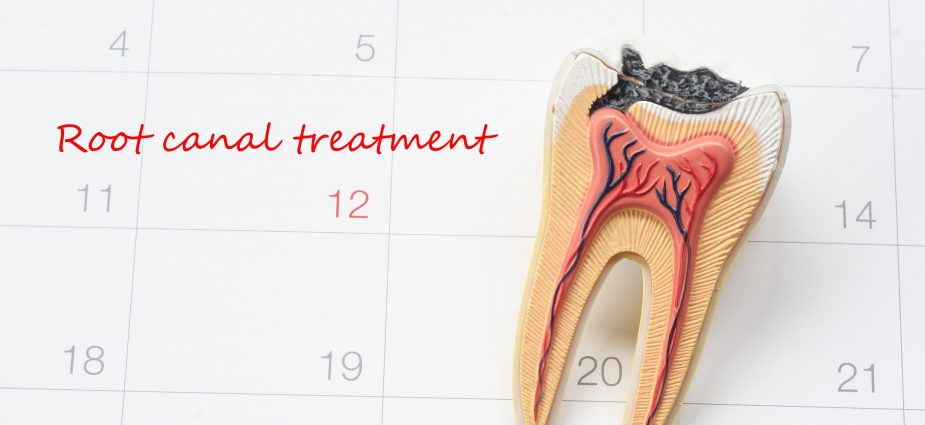 Root Canal Procedure | Who Performs it and What Does it Cost?