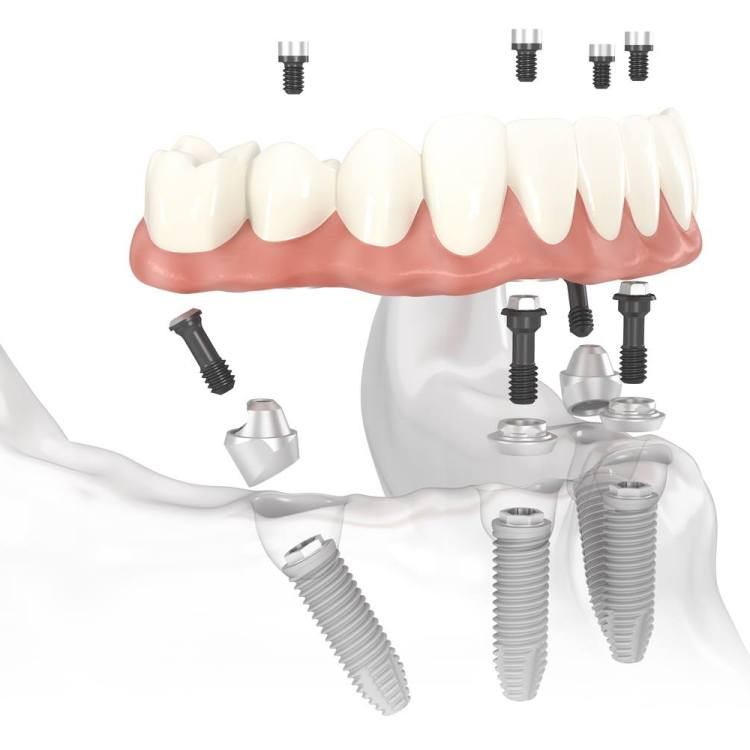 All on 4 Dental Implant Liverpool | Your Family Dentist Liverpool