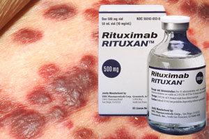 Rituxan Side Effects SJS and TEN - Parker Waichman LLP