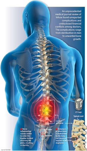 Medical Malpractice Hip Replacement Surgery Medtronic Infuse Bone Growth Lawsuit Parker Waichman Llp