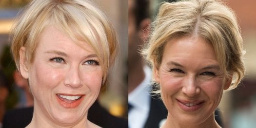 Before and after plastic surgery? Renee Zellweger in 2008 and 2019