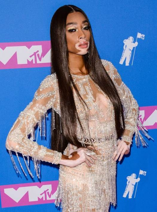 Winnie Harlow served as the carpet fashion host at the 2018 MTV Video Music Awards