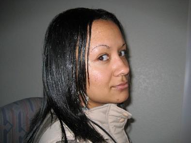 Symptoms of allergic reaction to hair weave hairsstyles your own human hair pmusecretfo Choice Image