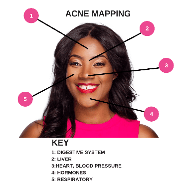 Talking Acne: Your acne may be telling you something about your body