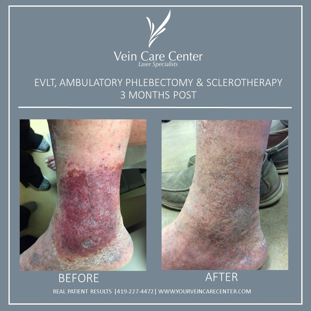 EVLT & Ambulatory Phlebectomy Before & After Lima Ohio