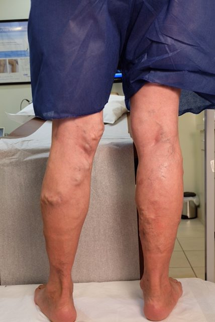 Varicose Veins Treatment Before & After Results | Chicago ...