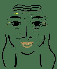 sorgenfalte_denkerstirn therapie mit botox bei youthconnection in hannover