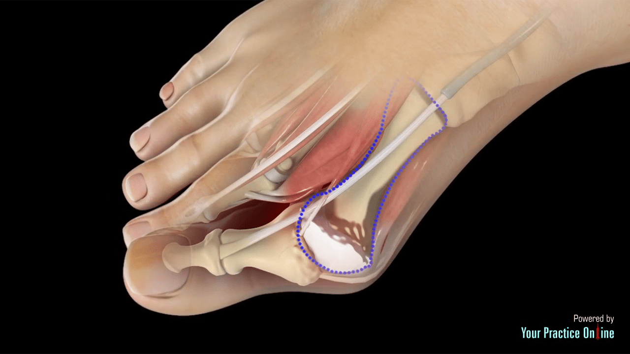hight resolution of diagram of bunion