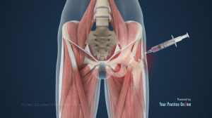 Xray Guided Hip Injections   Hip Orthopaedics Videos   YPO Patient Education