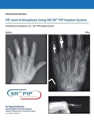 PIP Joint Arthroplasty Using SBi SR PIP Implant System