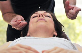 Acupuncture in forehead