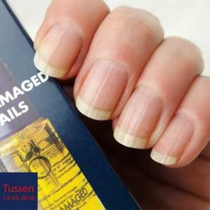 Herome-damaged-nails-yustsome4