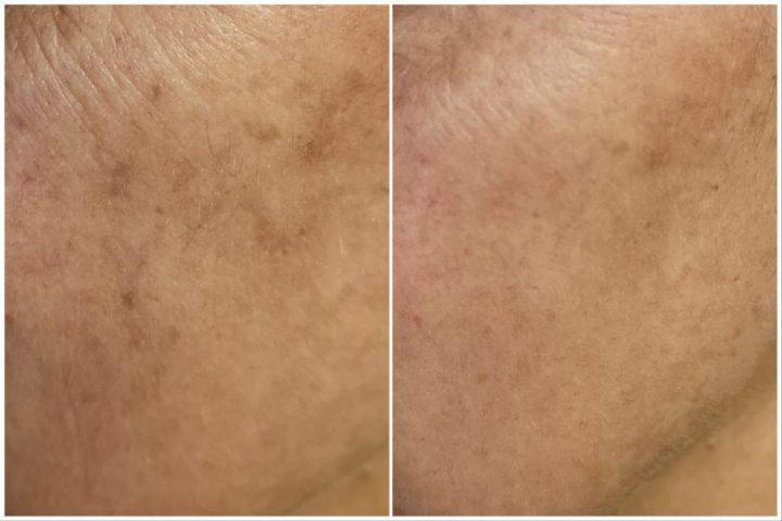 Luminexpert, huid, skin, verzorging, care, anti-age, Dr. Pierre Ricaud, Aha, fruitzuren,