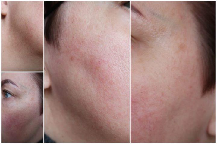 Collistar, anti, dark, spot, pigment, vlekken, pigmentvlekken, ouder, vrouw, huid, huidverzorging, beautysome, review, new, pure actives