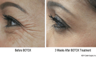 Botox for Crow's Feet Wrinkles
