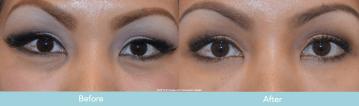 Juvederm for Dark Circles Under Eyes