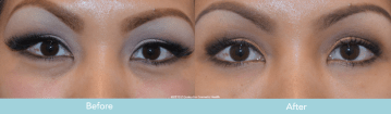 Juvederm for Dark Circles Under Eyes